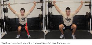 Excessive Medial Knee Displacement