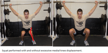Excessive Medial Knee Displacement